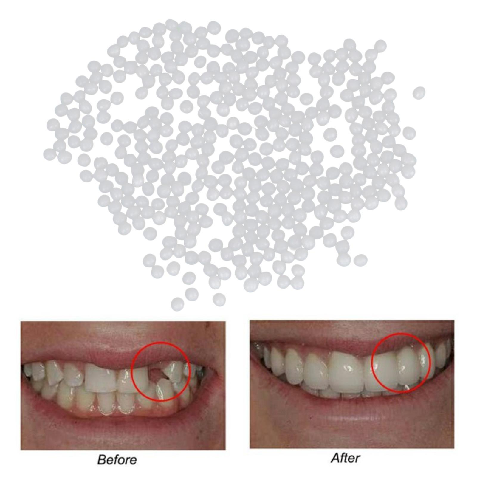 miniatura 10 - Multi-funzionale-Dente-Provvisorio-Kit-di-Riparazione-Modellabile-Termico