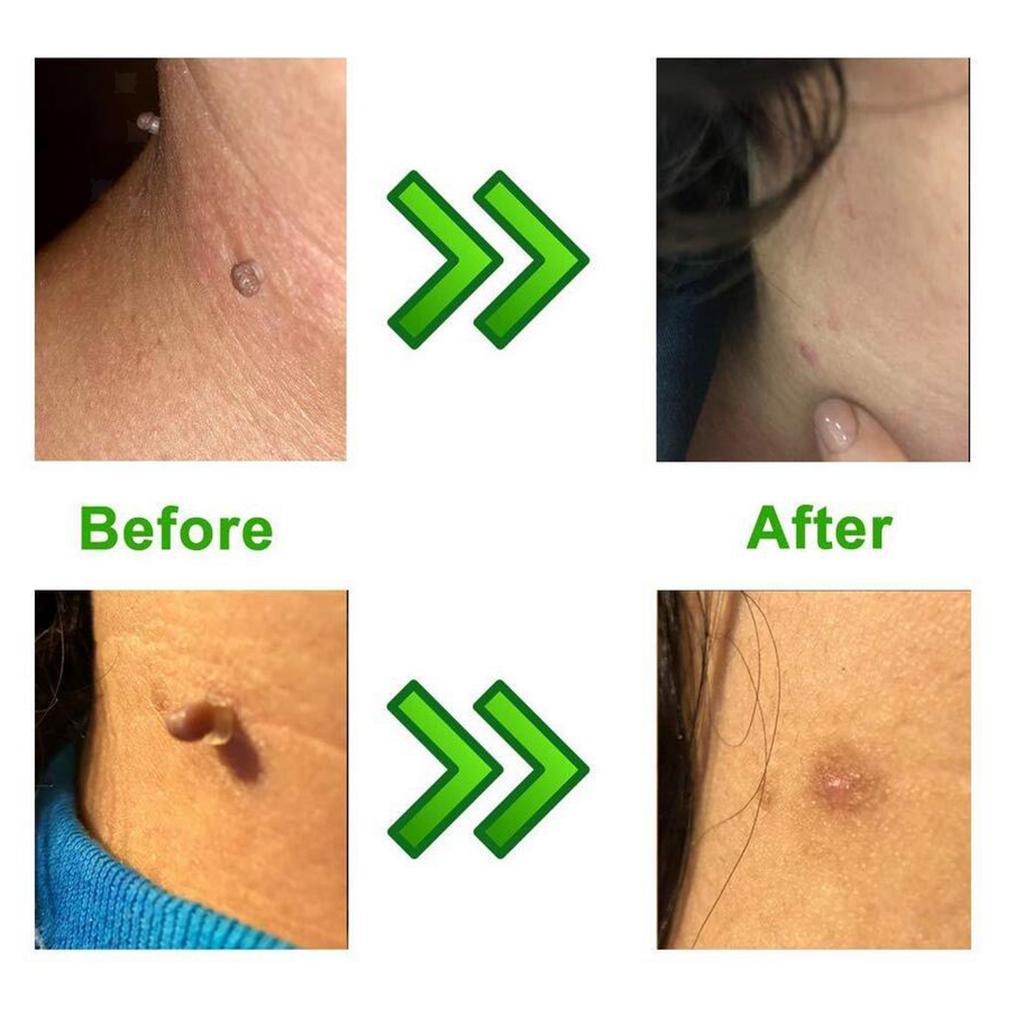 thumbnail 6 - Skin-Tag-Remover-Device-Kit-Fast-amp-Effective-Skin-Tags-Removal-Beauty-Tools